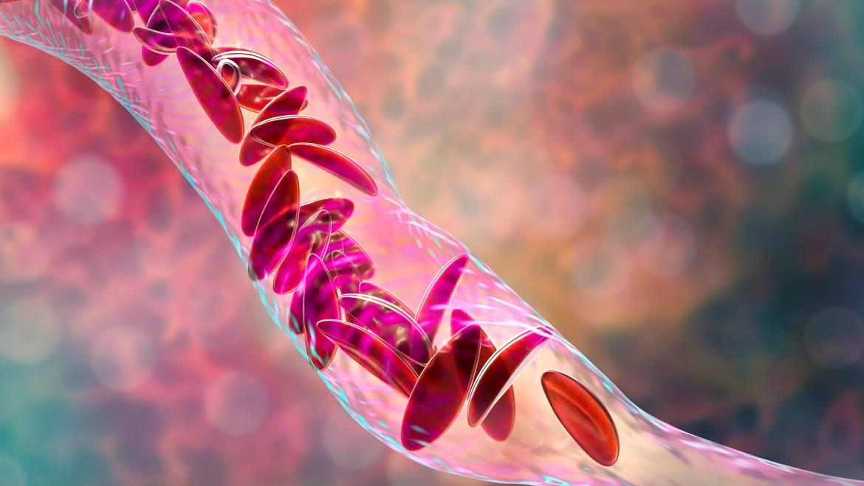 La drépanocytose, un problème majeur de santé publique en Afrique et ailleurs