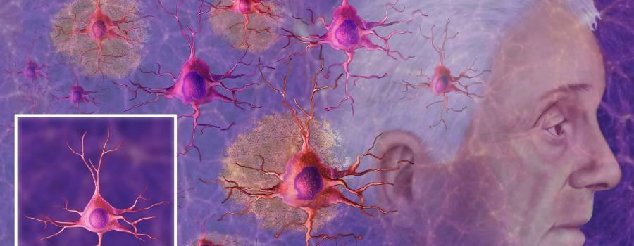 Sur les maladies neurodégénératives